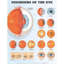 Eye Chart (Anatomical)  Disorders of the eye