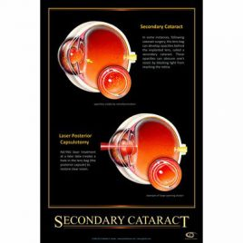 Patient Education Poster – Secondary Cataract