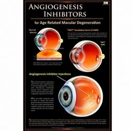 Patient Education Poster – Angiogenesis Inhibitors