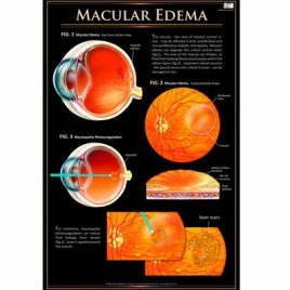 Patient Education Poster – Macular Edema