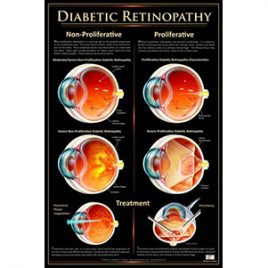 Patient Education Poster – Diabetic Retinopathy